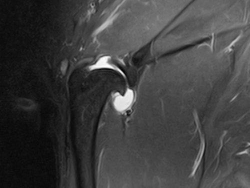 An MRI image