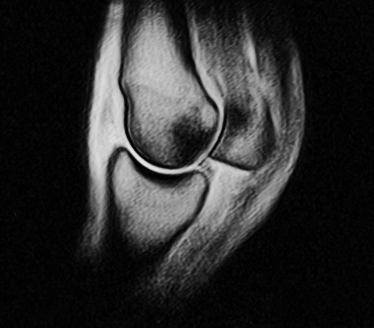 An Equine MRI scan of a joint