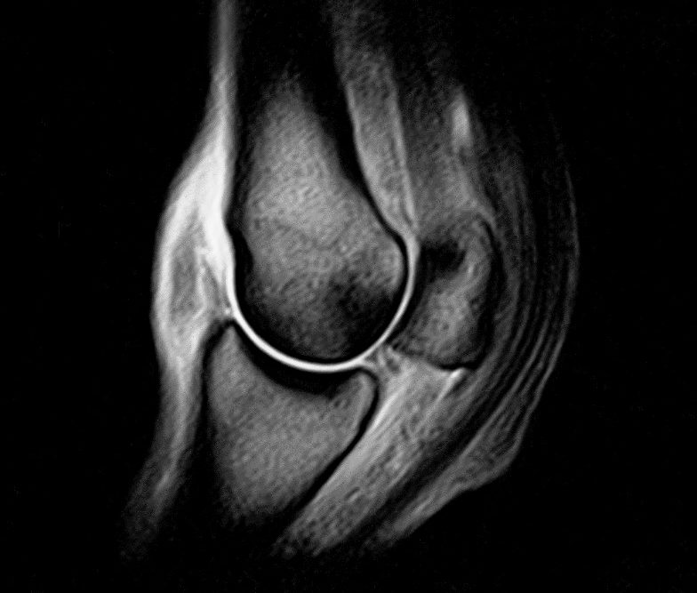 Equine MRI scan of a joint